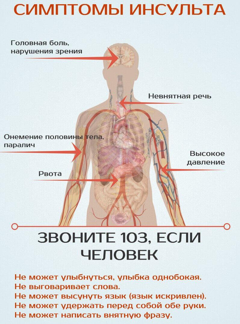 инсульт из-за остеохондроза
