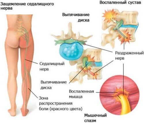 Почему защемляется седалищный нерв