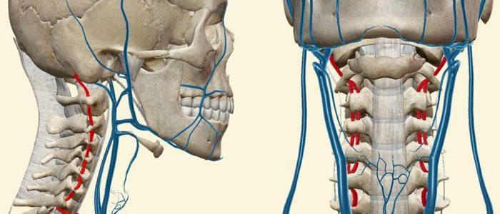 Синдром позвоночной артерии на фоне остеохондроза