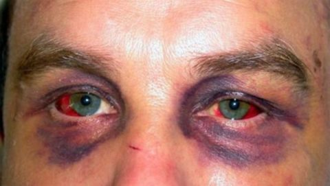 Синяки под глазами могут быть одним из признаков перелома верхней челюсти.