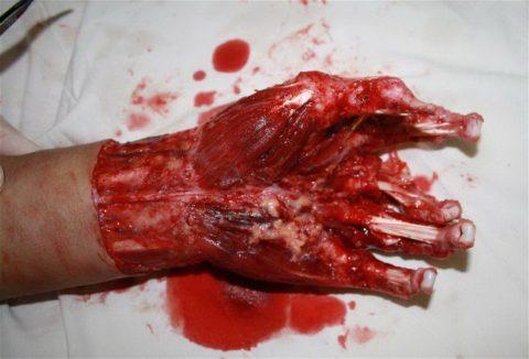 Скальпированная рана руки