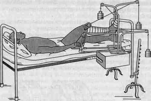 сухое скелетное вытяжение позвоночника