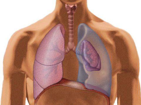 Скопление воздуха или газов в плевральной полости.
