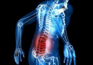 Симптомы и лечение циркулярной грыжи
