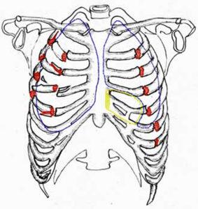 Осложнения перелома ребер: какие травмы являются самыми опасными, особенности сопутствующих осложнений