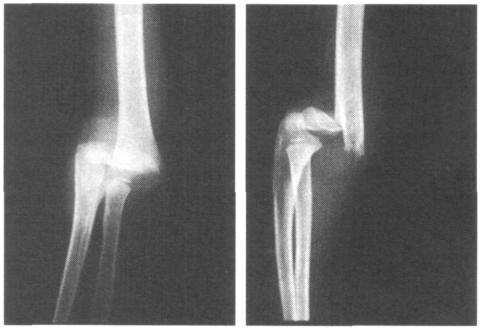 Смещенный перелом надмыщелка плечевой кости