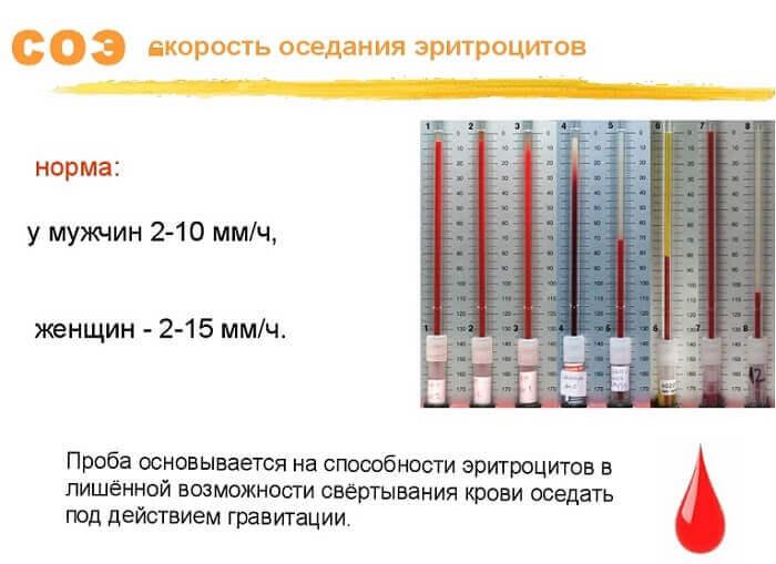скорость оседания эритроцитов