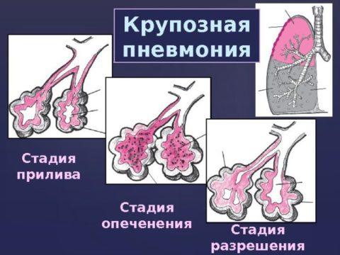 Состояние альвеол на разных стадиях