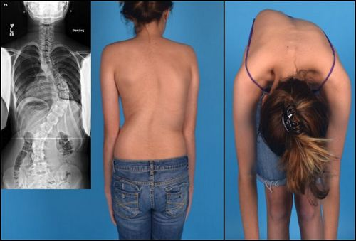 Сколиоз - частая причина спазма мышцы спины