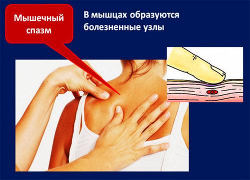 во время сна болит спина ниже лопаток