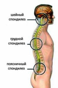 Причины и лечение спондилеза