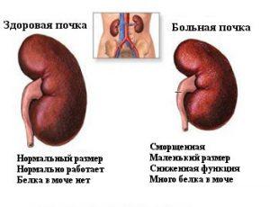Симптомы и лечение почечного диабета