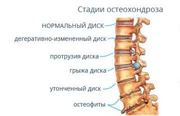 Степени остеохондроза грудного отдела
