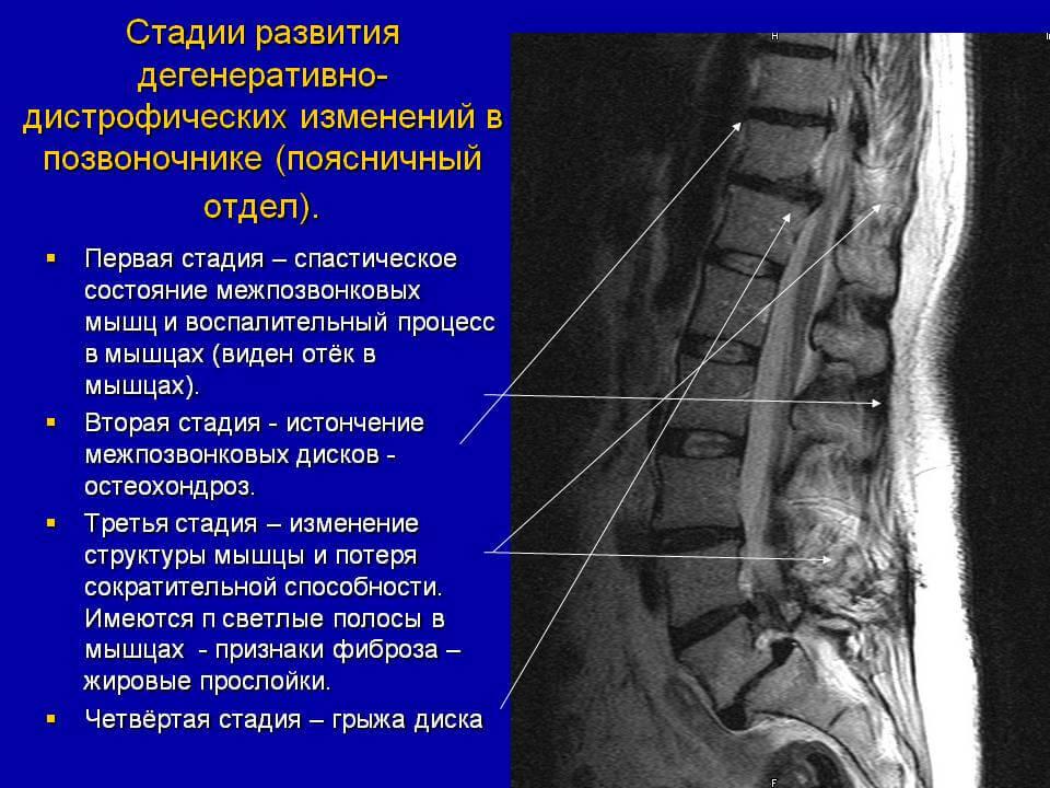 локализация боли при поясничном остеохондрозе
