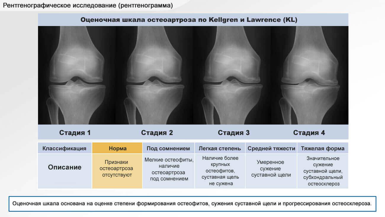 артроз коленного сустава степени