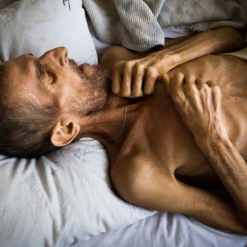 Стремительная потеря веса — одно из проявлений туберкулеза легких
