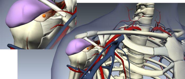 Причины и лечение субакромиального бурсита
