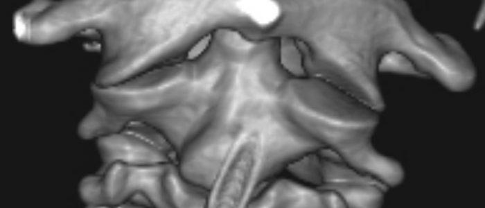 Проявление и лечение сустава Крювелье