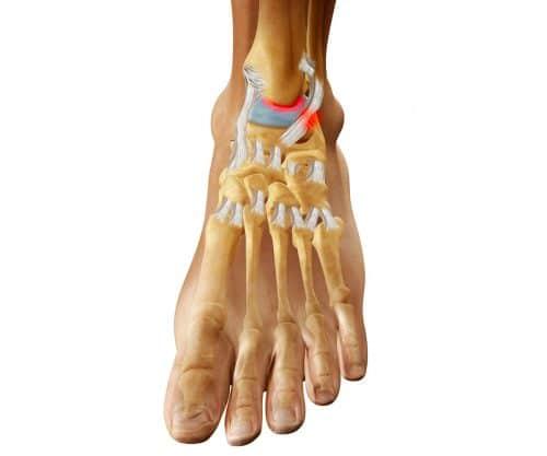 Деформация стопы как причина болей