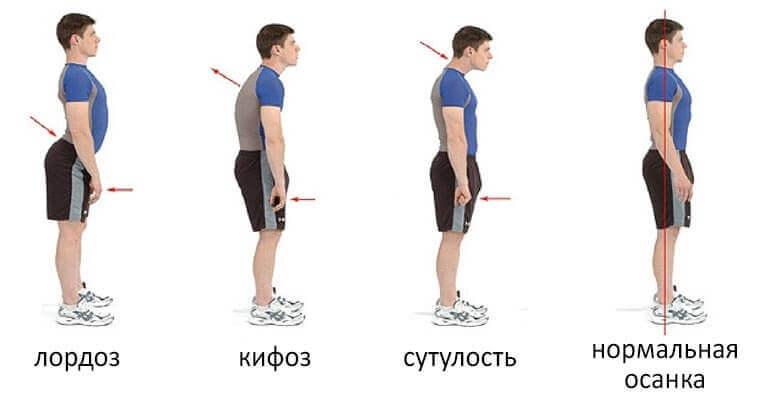 Типы искривлений спины