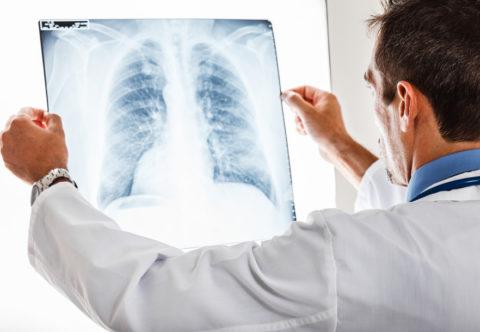 Своевременное обращение к врачу позволить снизить риск проявления последствий недуга.