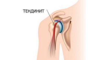 Болит левое плечо