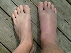 Опух палец на ноге и болит