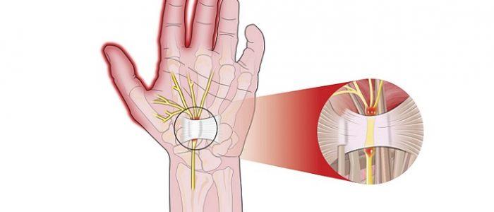 Причины и лечение тендовагинита кисти