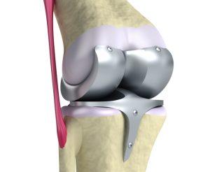 Протезирование суставов