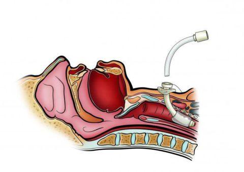 Трахеостомия при стенозе гортани