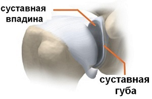Повреждение суставной губы плечевого сустава