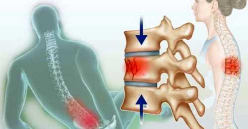 дорсопатия поясничного отдела позвоночника что это такое лечение