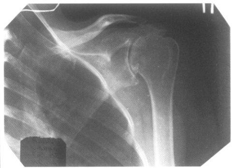 Травмы в верхней области плечевого сустава