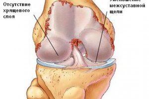 Остеохондроз колена