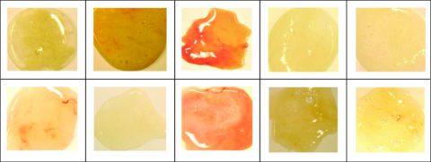 Цвет мокроты – важный диагностический признак