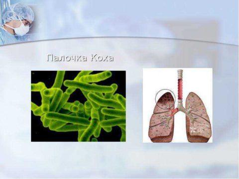 Туберкулез вызывают палочки Коха (микобактерии)