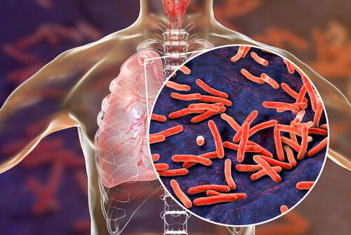 туберкулёз является причиной боли в пояснице