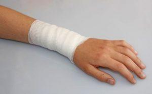Симптомы и лечение остеохондроза руки