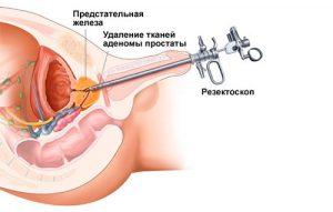 Аденома и диабет