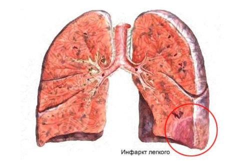 Участок ишемии в большинстве случаев возникает в течение 24 часов после закупорки мелкого или среднего сосуда