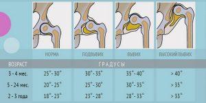 Угол тазобедренного сустава у грудных детей