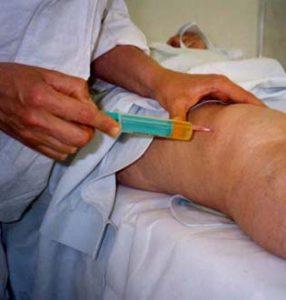 Мовалис в лечении артроза