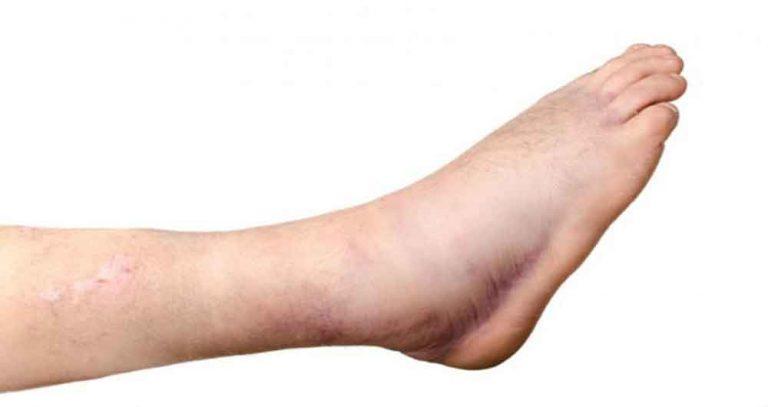 Какой коррекции подлежат несросшиеся переломы и ложные суставы