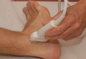 Ультразвуковое исследование голеностопного сустава