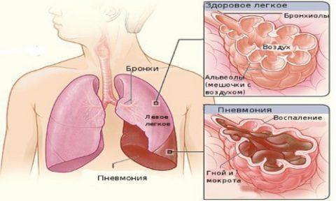 В альвеолах накапливаются гной и мокрота