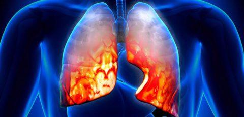 В чем опасность двухстороннего воспаления легких?