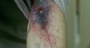 Гнойные раны после укусов собак: причины осложнений, их виды и лечение