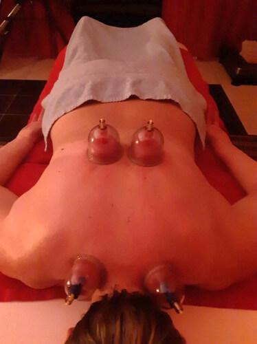 Баночный массаж при грыже шморля