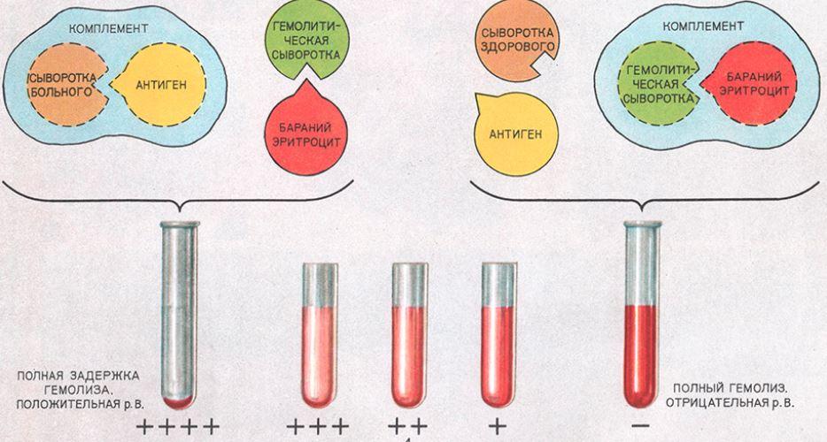Лечение сифилиса реакция Вассермана