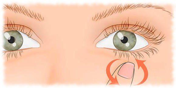 Мешки под глазами - как бороться в домашних условиях